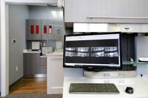 Image of digital x-rays used at Willow Lake Dental